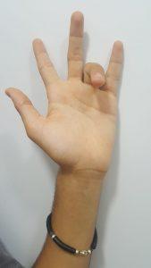 כאבים בכף היד - טריגר פינגר