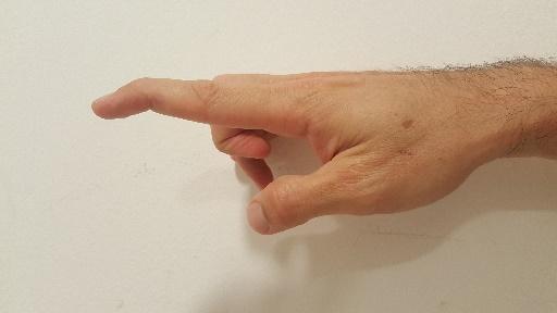 תיאור מקרה: Mallet Finger – מאלט פינגר (אצבע פטיש)