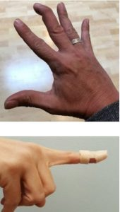 כאבים בכף היד - אצבע פטישונית