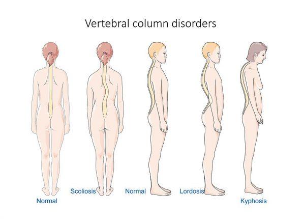 קיפוזיס (עקשת) ומחלת שוירמן